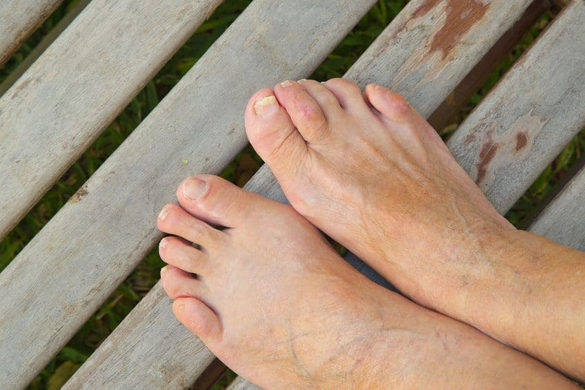 5 Ways to Relieve Your Bunions Without Surgery