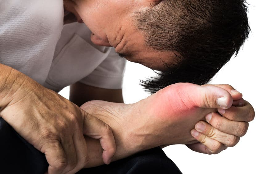 5 Steps to Stop a Gout Attack or Gout Flare Up