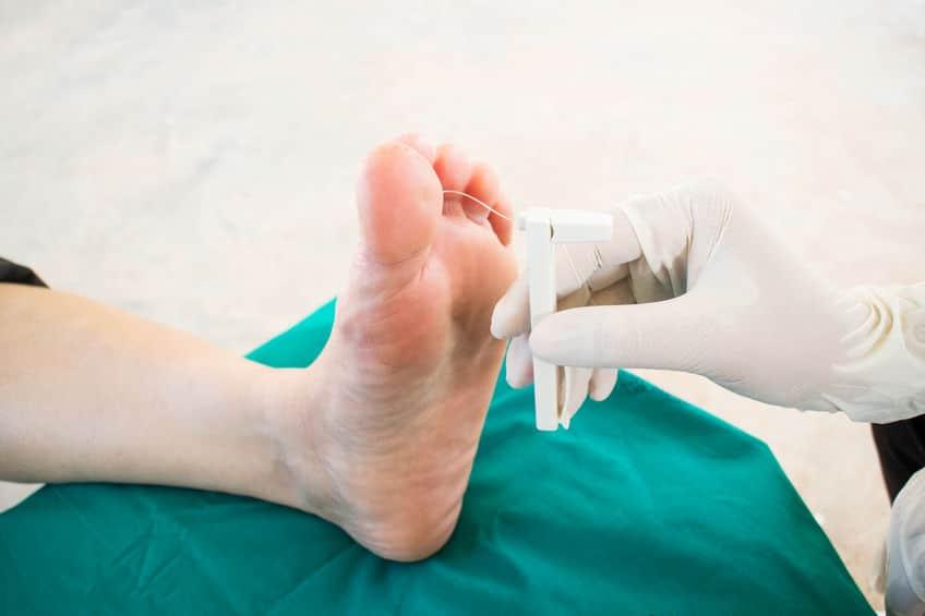 Charcot Foot & Diabetes