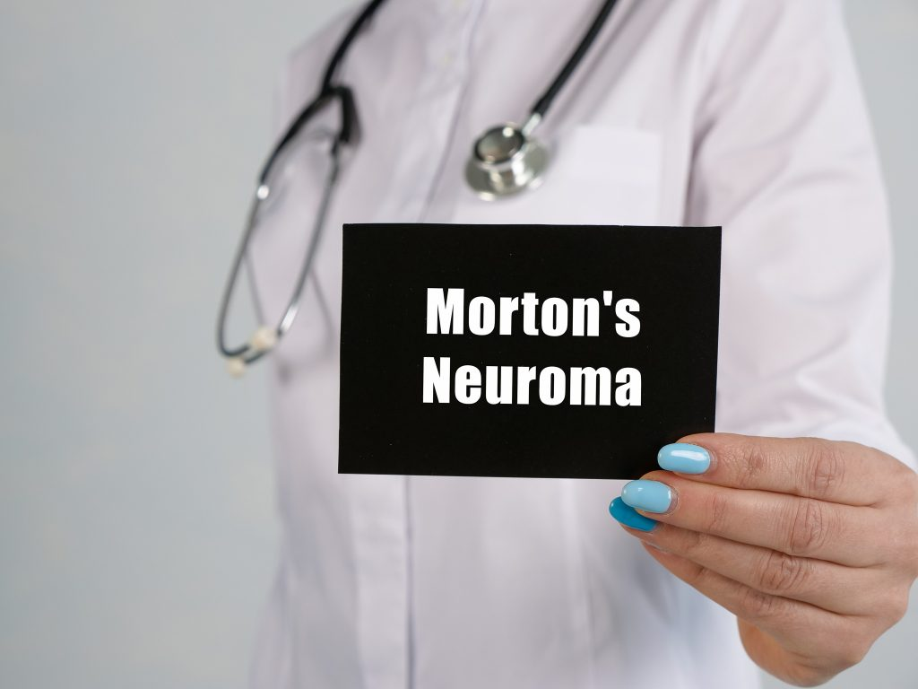 Here's Everything You Need To Know About Morton's Neuroma